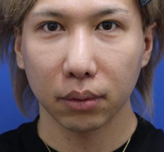 オザキクリニックLUXE新宿の人中短縮+口角拳上+鼻尖形成+鼻翼縮小+耳介軟骨移植の症例写真(アフター)