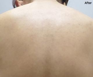 ミオル韓医院の背中FCRの症例写真(アフター)
