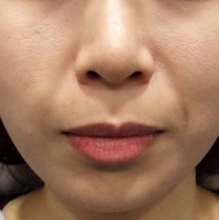 ミオル韓医院のほうれい線糸リフティングの症例写真(ビフォー)