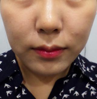 ミオル韓医院のVライン糸リフティングの症例写真(ビフォー)
