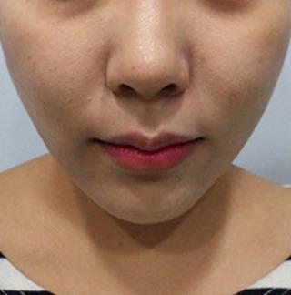 ミオル韓医院のVライン糸リフティングの症例写真(アフター)