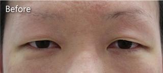 MIYAフェイスクリニックの上眼瞼たるみ取り(眉下切開法)の症例写真(ビフォー)