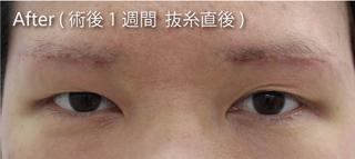 MIYAフェイスクリニックの上眼瞼たるみ取り(眉下切開法)の症例写真(アフター)