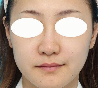 ヴェリテクリニック大阪院の鼻尖形成・鼻尖縮小・鼻翼縮小の症例写真(ビフォー)