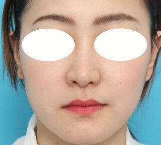 ヴェリテクリニック大阪院の鼻尖形成・鼻尖縮小・鼻翼縮小の症例写真(アフター)