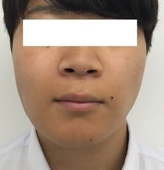 東郷美容形成外科 福岡のエラボトックス注射・BNLS neoの症例写真(ビフォー)