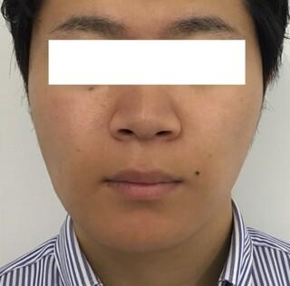 東郷美容形成外科 福岡のエラボトックス注射・BNLS neoの症例写真(アフター)