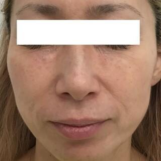 東郷美容形成外科 福岡の目の下のクマ ヒアルロン酸注射の症例写真(アフター)