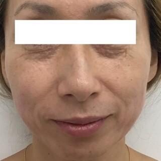 東郷美容形成外科 福岡の目の下のクマ ヒアルロン酸注射の症例写真(ビフォー)