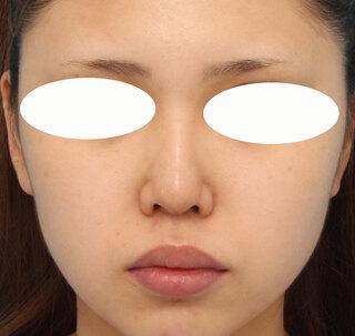 ヴェリテクリニック銀座院の鼻中隔延長の症例写真(ビフォー)