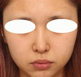 ヴェリテクリニック大阪院の鼻中隔延長の症例写真(アフター)