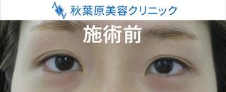 秋葉原美容クリニックの目頭切開の症例写真(ビフォー)