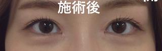 秋葉原美容クリニックの目頭切開の症例写真(アフター)