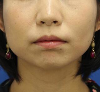 オザキクリニックLUXE新宿の顔の脂肪吸引(バッカルファット)+ボトックス(小顔)の症例写真(ビフォー)