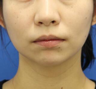オザキクリニックLUXE新宿の顔の脂肪吸引(バッカルファット)+ボトックス(小顔)の症例写真(アフター)