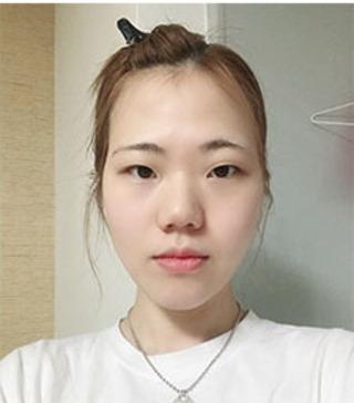 バノバギ整形外科の輪郭3点、目、鼻、額の脂肪移植の症例写真(ビフォー)