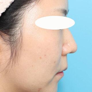 ヴェリテクリニック大阪院の鼻尖縮小・鼻中隔延長+肋軟骨移植・鼻骨骨切り幅寄せの症例写真(ビフォー)