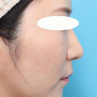 ヴェリテクリニック大阪院の鼻尖縮小・鼻中隔延長+肋軟骨移植・鼻骨骨切り幅寄せの症例写真(アフター)