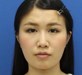 オザキクリニックLUXE新宿の顔の脂肪吸引(頬・あご下+バッカルファット)+額ボトックスの症例写真(ビフォー)