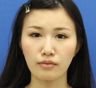 オザキクリニックLUXE新宿の顔の脂肪吸引(頬・あご下+バッカルファット)+額ボトックスの症例写真(アフター)