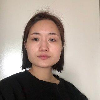 TL美容整形外科 顔面輪郭・目・鼻センターの輪郭2点(長曲線エラ縮小術、前顎V字骨切り)、ワシ、鼻中隔、鼻骨切りの症例写真(ビフォー)