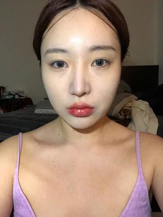 TL美容整形外科 顔面輪郭・目・鼻センターの輪郭3点(3D頬骨縮小術、長曲線エラ縮小術、前顎T字骨切り)、目頭切開、鼻再手術の症例写真(ビフォー)