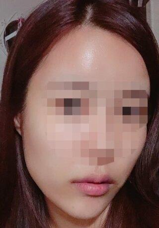 TL美容整形外科 顔面輪郭・目・鼻センターの長曲線エラ縮小術、前顎の症例写真(ビフォー)