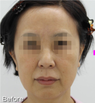 MIYAフェイスクリニックのミニリフト(ミドル~ロー)・脂肪吸引(ホホ・アゴ)の症例写真(ビフォー)