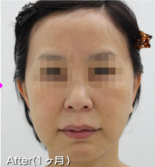 MIYAフェイスクリニックのミニリフト(ミドル~ロー)・脂肪吸引(ホホ・アゴ)の症例写真(アフター)