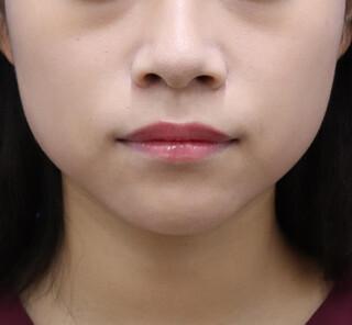 オザキクリニックLUXE新宿の顔の脂肪吸引(バッカルファット)の症例写真(ビフォー)