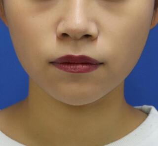 オザキクリニックLUXE新宿の顔の脂肪吸引(バッカルファット)の症例写真(アフター)
