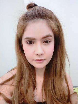 グランド整形外科の二重まぶた切開法、 目つき矯正、 内視鏡額挙上術の症例写真(ビフォー)