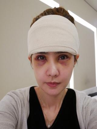 グランド整形外科の二重まぶた切開法、 目つき矯正、 内視鏡額挙上術の症例写真(アフター)