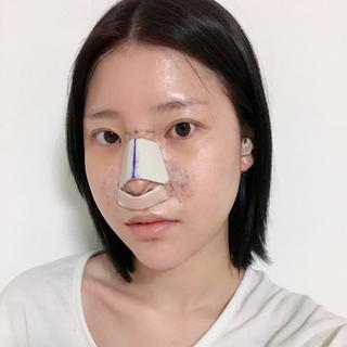 グランド整形外科の鼻柱+鼻先、 小鼻縮小術、 短い鼻整形術、 頬骨縮小術、 エラ縮小術、 顎なし矯正術の症例写真(アフター)