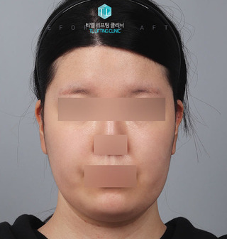 TL美容クリニック リフティング・皮膚管理センターのパワーVリフティングの症例写真(ビフォー)
