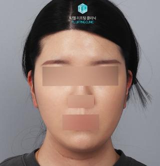 TL美容クリニック リフティング・皮膚管理センターのパワーVリフティングの症例写真(アフター)