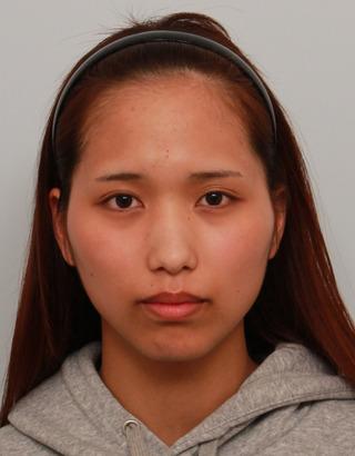 バノバギ整形外科の輪郭3点(頬、顎、エラ)、鼻手術、鷲鼻削り、骨切幅寄せ、非切開目つき矯正の症例写真(ビフォー)