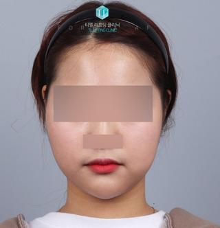 TL美容クリニック リフティング・皮膚管理センターのパワーVリフティング / バッカルファット除去 / 額脂肪移植の症例写真(ビフォー)