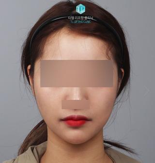 TL美容クリニック リフティング・皮膚管理センターのパワーVリフティング / バッカルファット除去 / 額脂肪移植の症例写真(アフター)