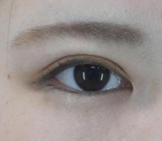 共立美容外科 仙台院の目頭形成の症例写真(アフター)