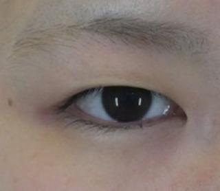 共立美容外科 仙台院の目頭形成の症例写真(ビフォー)