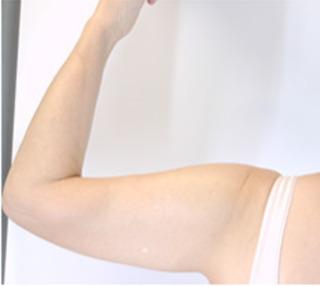 共立美容外科 仙台院の二の腕の脂肪吸引の症例写真(ビフォー)