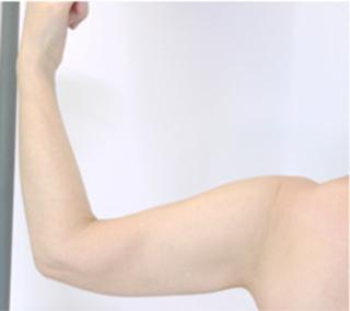 共立美容外科 仙台院の二の腕の脂肪吸引の症例写真(アフター)