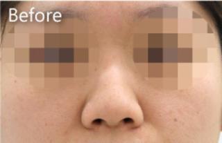 MIYAフェイスクリニックの鼻プロテーゼ、鼻尖縮小、鼻中隔延長の症例写真(ビフォー)