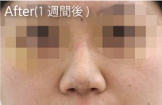 MIYAフェイスクリニックの鼻プロテーゼ、鼻尖縮小、鼻中隔延長の症例写真(アフター)