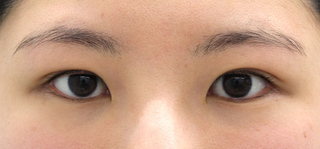 MIYAフェイスクリニックの埋没重瞼(Wクロスリング法)の症例写真(アフター)