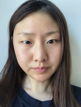 TL美容整形外科 顔面輪郭・目・鼻センターの切開目つき矯正、目頭切開、目尻切開、垂れ目切開の症例写真(ビフォー)