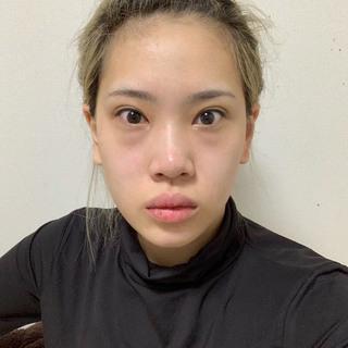 TL美容整形外科 顔面輪郭・目・鼻センターの切開目つき矯正、目尻・垂れ目切開、目の下脂肪除去、鼻手術の症例写真(ビフォー)