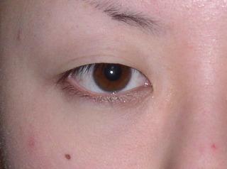 共立美容外科 仙台院の目頭切開の症例写真(ビフォー)