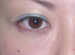 共立美容外科 仙台院の目頭切開の症例写真(アフター)